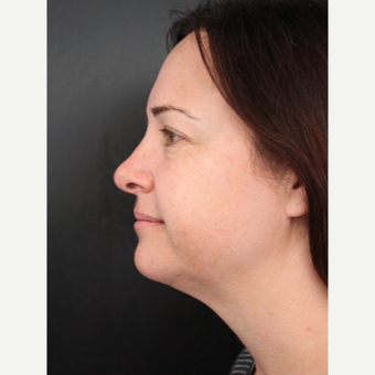 35-44 year old woman treated with Facelift before 3405549
