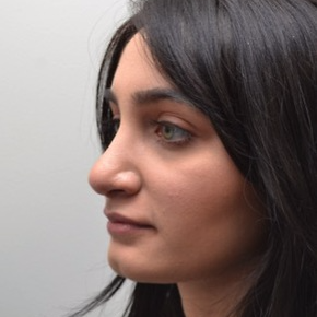 18-24 year old woman treated with Rhinoplasty after 3747707