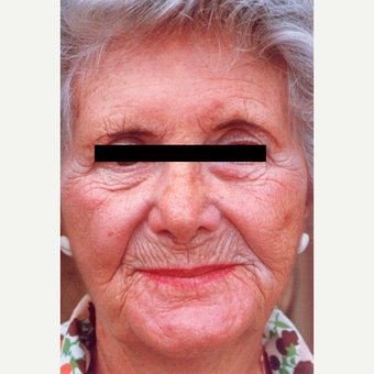 75 and up year old woman treated with Chemical Peel before 3543837
