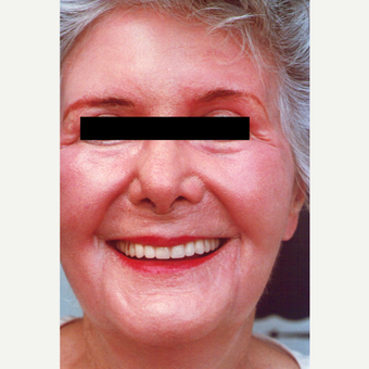 75 and up year old woman treated with Chemical Peel after 3543837