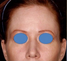 25-34 year old woman treated with Forehead Reduction before 1901667