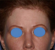 25-34 year old woman treated with Forehead Reduction after 1901667