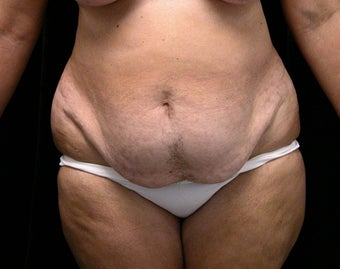 54 Year Old Female Patient - Tummy Tuck with Liposuction before 903010