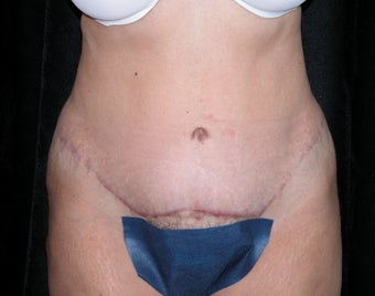 54 Year Old Female Patient - Tummy Tuck with Liposuction after 903010