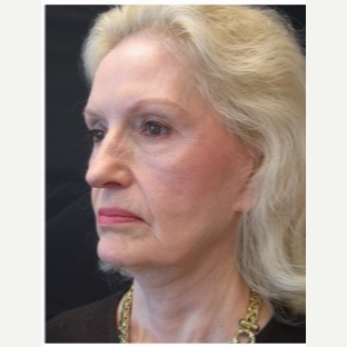 65-74 year old woman treated with Facelift before 3088553