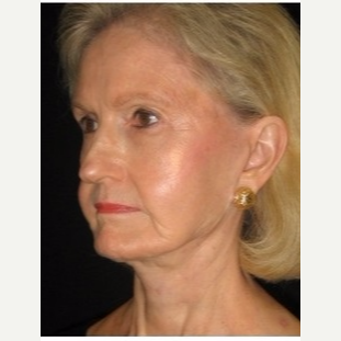 65-74 year old woman treated with Facelift after 3088553