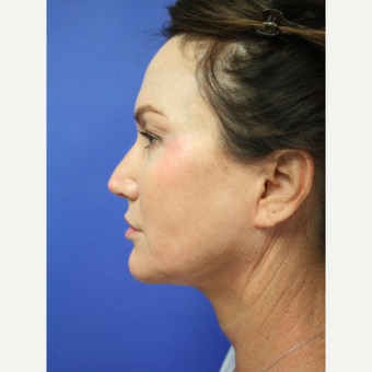45-54 year old woman treated with Facelift Revision after 3405327