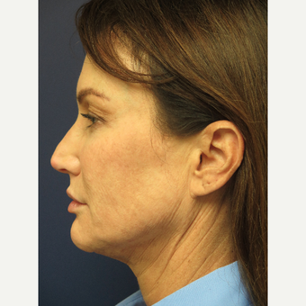 45-54 year old woman treated with Facelift Revision before 3405327