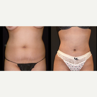 18-24 year old woman treated with Liposuction before 3717670