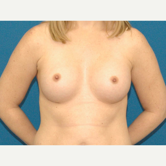 30 year old woman treated with Breast Augmentation after 3266690