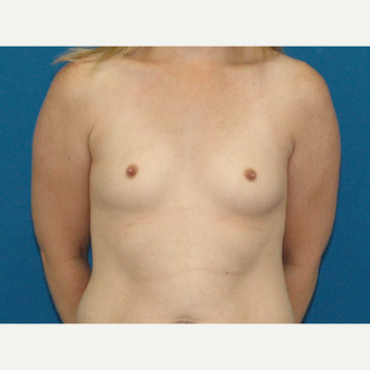 30 year old woman treated with Breast Augmentation before 3266690