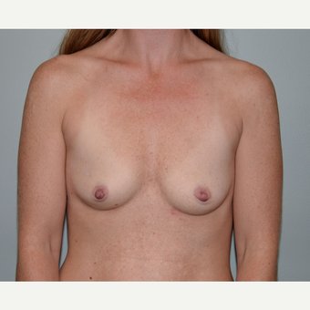 35-44 year old woman treated with Breast Augmentation before 3414070