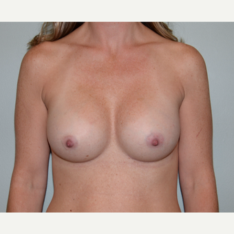 35-44 year old woman treated with Breast Augmentation after 3414070