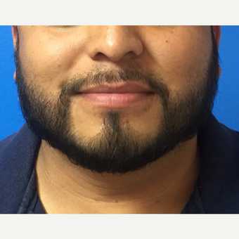 35-44 year old man treated with Hair Transplant after 3010018
