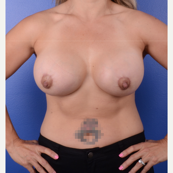 45-54 year old woman treated with Breast Lift with Implants after 3804888