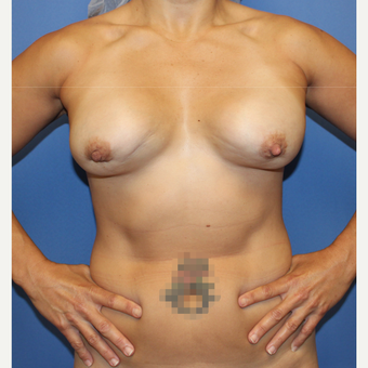 45-54 year old woman treated with Breast Lift with Implants before 3804888