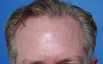 50 year old gentleman treated for hair loss and high hairline