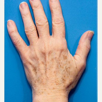 45-54 year old woman treated with Age Spots Treatment before 2881293