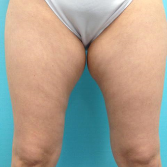 35-44 year old woman treated with Slim Lipo before 3136100