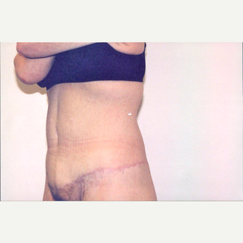 35-44 year old woman treated with Body Lift after 2838305