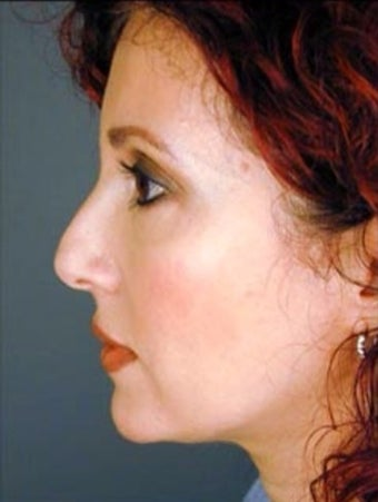 Female Primary Rhinoplasty  977148