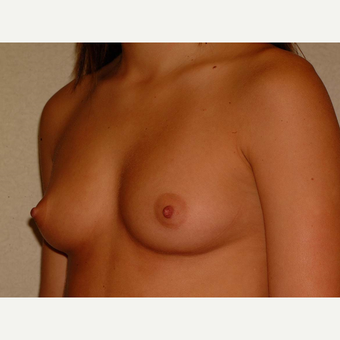 20 y/o Transaxillary Submuscular Breast Augmentation before 3066473
