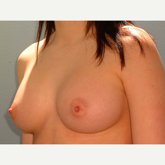 20 y/o Transaxillary Submuscular Breast Augmentation after 3066473