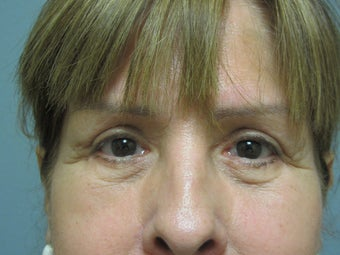 Blepharoplasty, 63 Year Old Female after 1117146