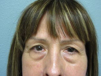 Blepharoplasty, 63 Year Old Female before 1117146