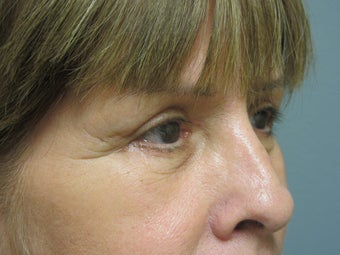 Blepharoplasty, 63 Year Old Female 1117146