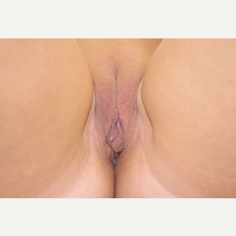 35-44 year old woman treated with Labiaplasty before 3055268