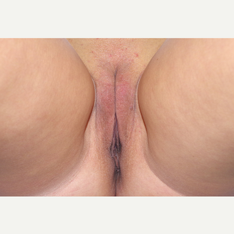 35-44 year old woman treated with Labiaplasty after 3055268