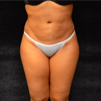 Liposuction after 3036706