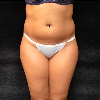 Liposuction before 3036706