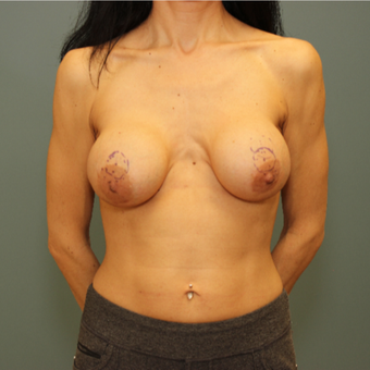 45-54 year old woman treated with Breast Implant Revision and Mastopexy before 3630161