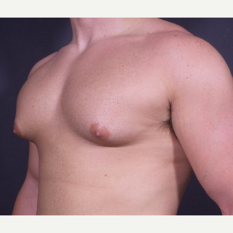 18-24 year old man treated with Male Breast Reduction before 3101097