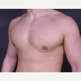 18-24 year old man treated with Male Breast Reduction after 3101097