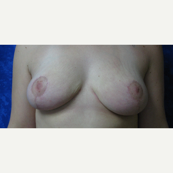 25-34 year old woman treated with Breast Reduction after 3306045