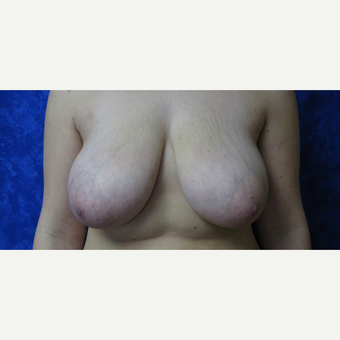 25-34 year old woman treated with Breast Reduction before 3306045
