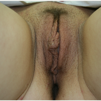 25-34 year old woman treated with Labiaplasty before 2815346