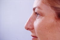 Rhinoplasty before 3446447