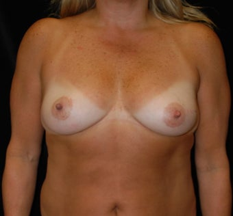 Breast Reconstruction with DIEP flap before 1266611