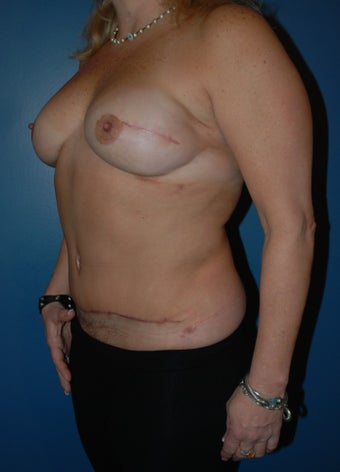 Breast Reconstruction with DIEP flap 1266611
