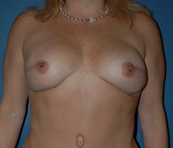 Breast Reconstruction with DIEP flap after 1266611