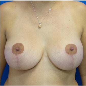Breast Lift Before After Photo