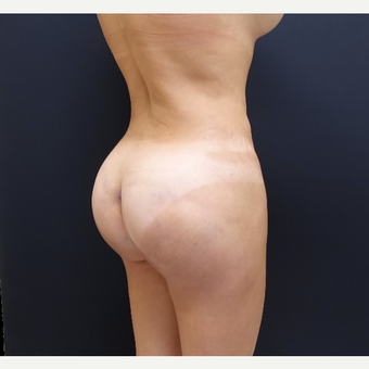 35-44 year old woman treated with 548cc Butt Implants for her Butt Lift after 3235667