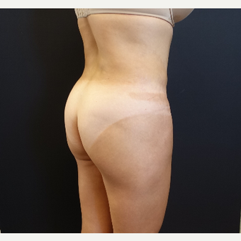 35-44 year old woman treated with 548cc Butt Implants for her Butt Lift before 3235667