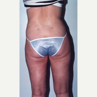 Liposuction 1888131