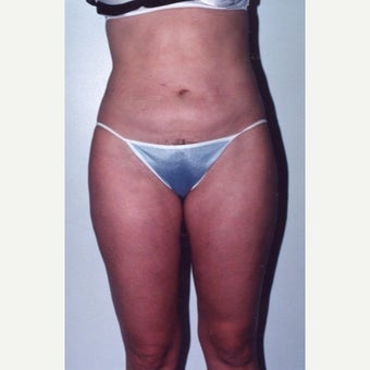 Liposuction after 1888131