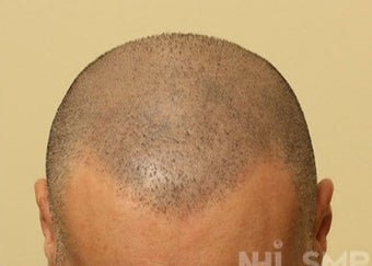 45-54 year old man treated with Hair Transplant Scalp MicroPigmentation SMP after 1967606